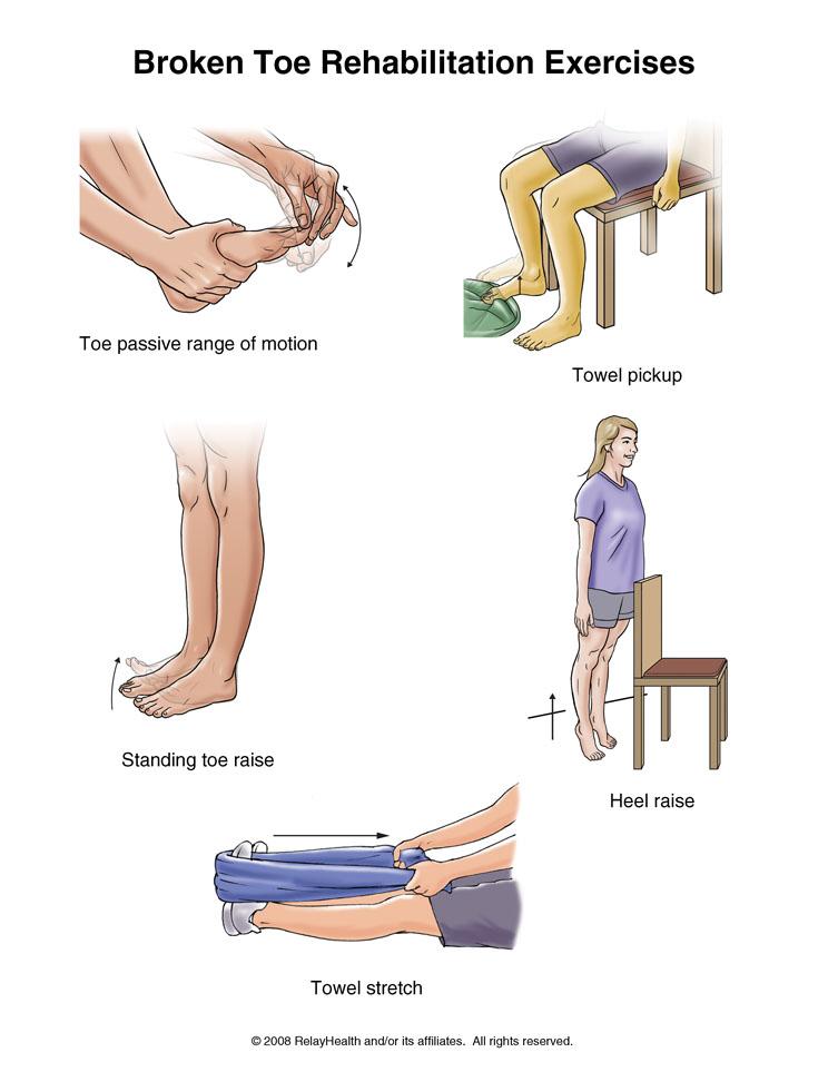 درمان شکستگی انگشتان پا