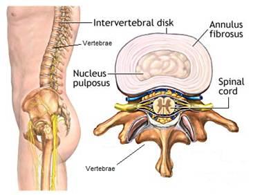 آسیب دیسک ناحیه پشت