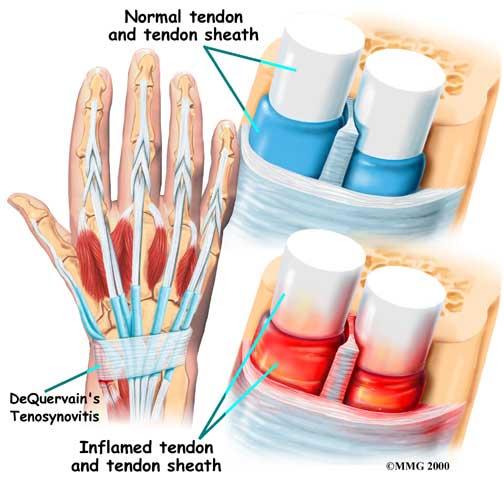 حرکاتی برای درمان التهاب تاندون مچ دست