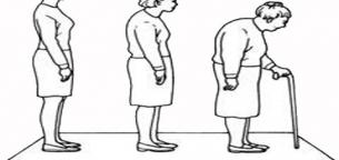ناهنجاری های جسمانی سالمندان