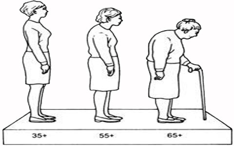 Physical abnormalities in elderly ناهنجاری های جسمانی سالمندان