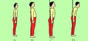ناهنجاری قامتی