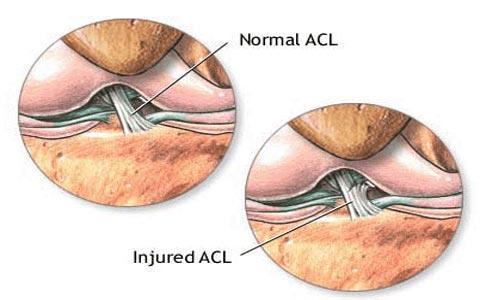 آسیب رباط صلیبی ACL یا قدامی