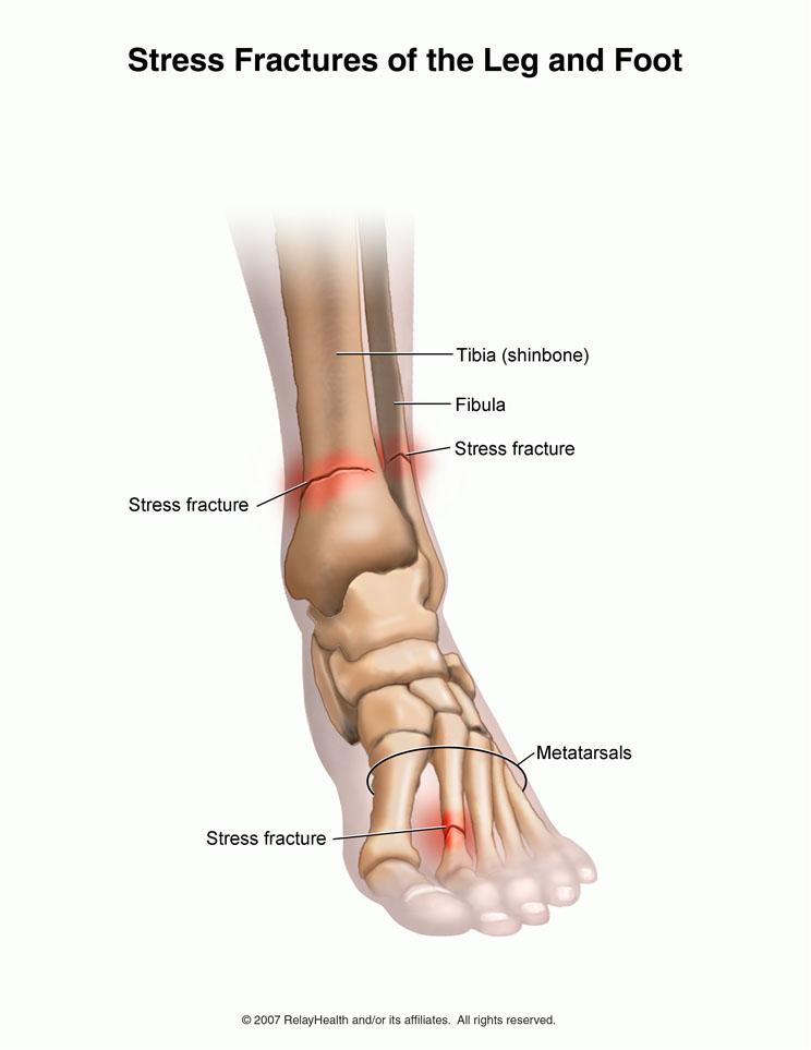 شکستگی استرسی استخوان های کف پا