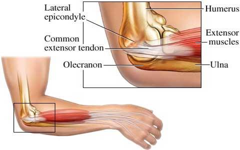 آسیب آرنج تنیس بازان