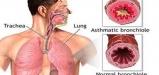 What-sports-asthma-elmevarzesh