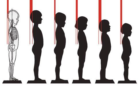 ناهنجاری های قامتی در کودکان