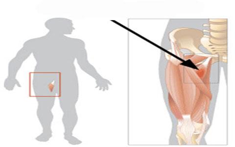 کشیدگی عضلات کشاله ران ، درمان و پیشگیری