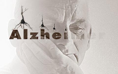 تأثیر ورزش بر آلزایمر