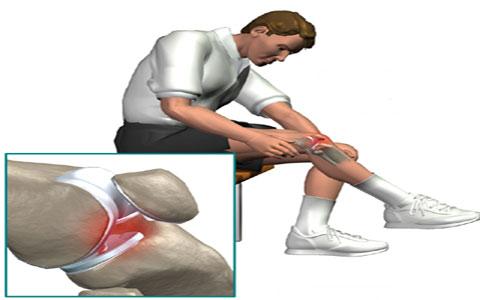 locked-knee