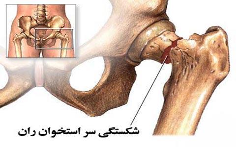 Hip fracture شکستگی سر استخوان ران