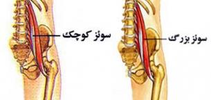آشنایی با حرکات ستون فقرات و عضلات درگیر