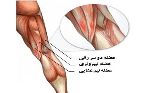Hamstring-tendonitis-1-elmevarzesh