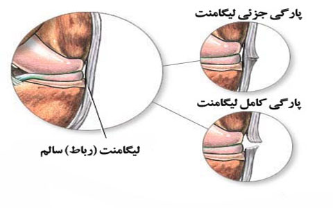 Ligament-rupture