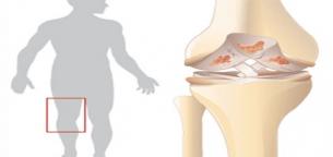 Osteoarthritis-of-the-knee-