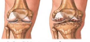 Osteoarthritis-of-the-knee