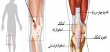 Quadriceps-tendonitis