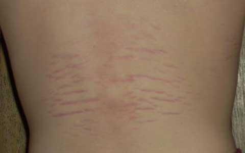 red-stretch-marks-elmevarzesh-
