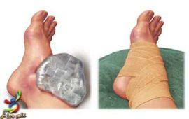 روش های درمانی آسیب حاد