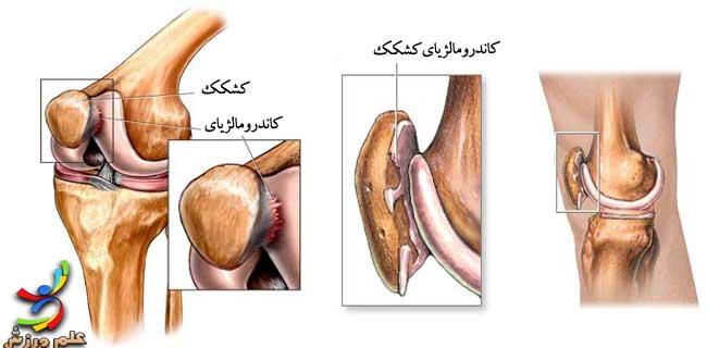 chondromalacia-patellar-1-elmevarzesh