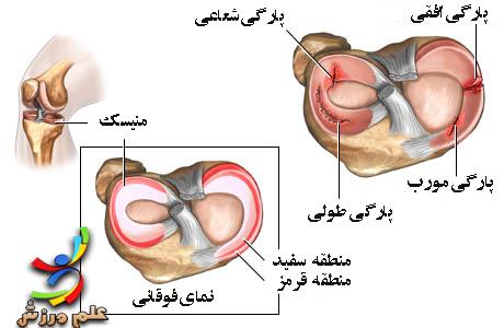 آسیب های منیسک زانو