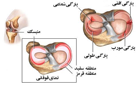 آسیب های زانو