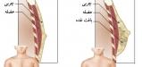 علت بزرگ شدن سینه مردان و ارتباط داروهای بدنسازی با آن