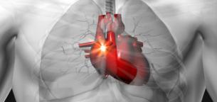 تأثیر مصرف منظم شکلات بر یک بیماری قلبی