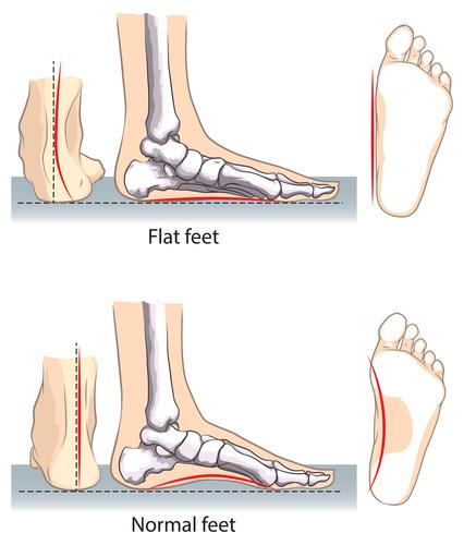 صافی کف پا چیست و چگونه کف پای صاف را درمان کنیم؟