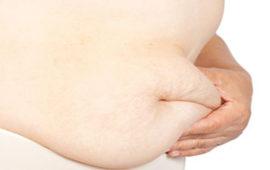 رفع افتادگی پوست بعد از لاغری