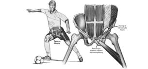 چگونه کشیدگی عضلات کشاله ران را درمان کنیم؟