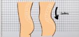 گودی کمر چیست و چگونه گودی کمر را درمان کنید؟