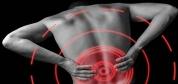 تمرینات مخصوص کاهش درد سیاتیک