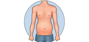 5 علامت که نشان از وجود چربی اضافه در بدن شما است